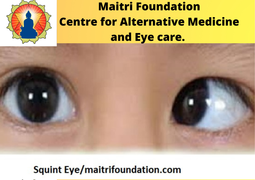 Natural treatment for Squint Eye